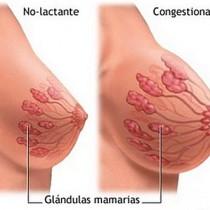 Ingurgitación mamaria